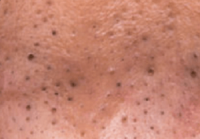 Blackheads look like this. Zoomed in picture of Blackheads on face