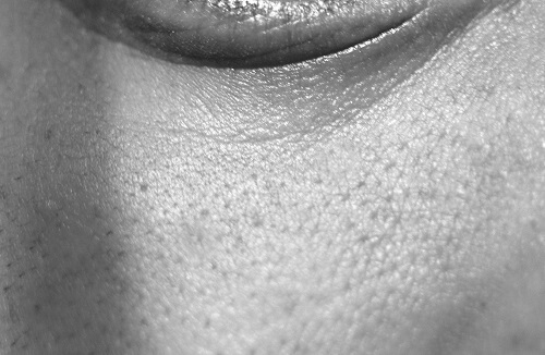 How Enlarged pores look like in men. Black and White picture