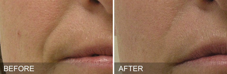 Hydrafacial Before and After Picture 2