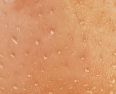 Sebaceous Filaments look like this on Face zoomed in.